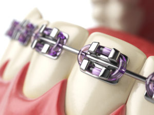 braces - orthodontists